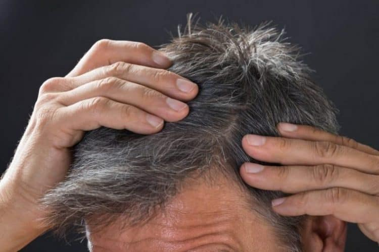 best grey hair cure and treatment