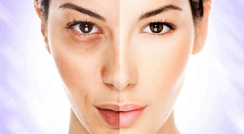Skin whitening pills before and after picture