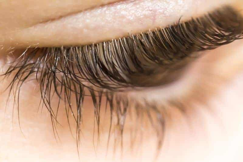 Eyelash Mites Causes Symptoms In Humans Pictures Mascara