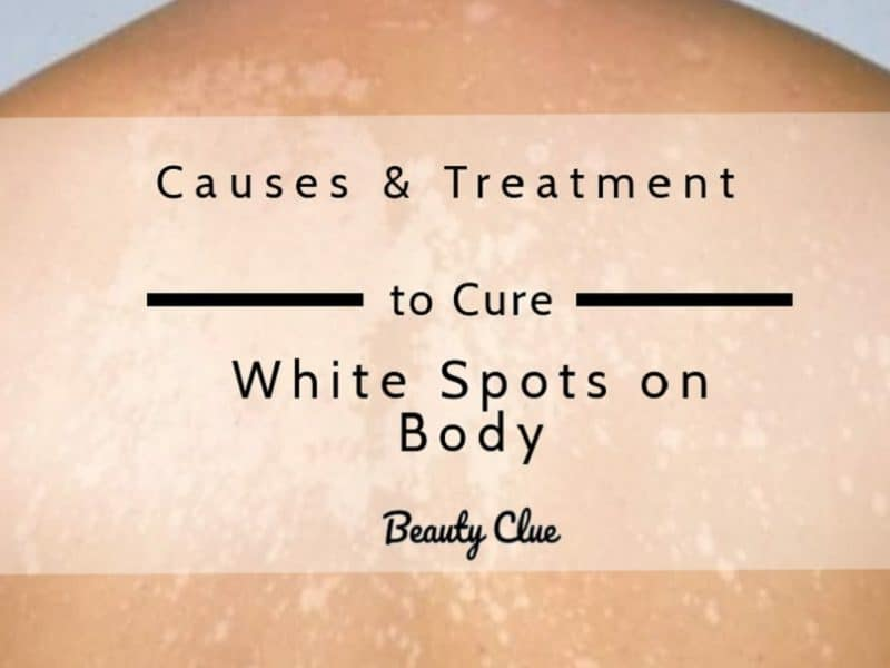 reasons and treatment of white spot on body