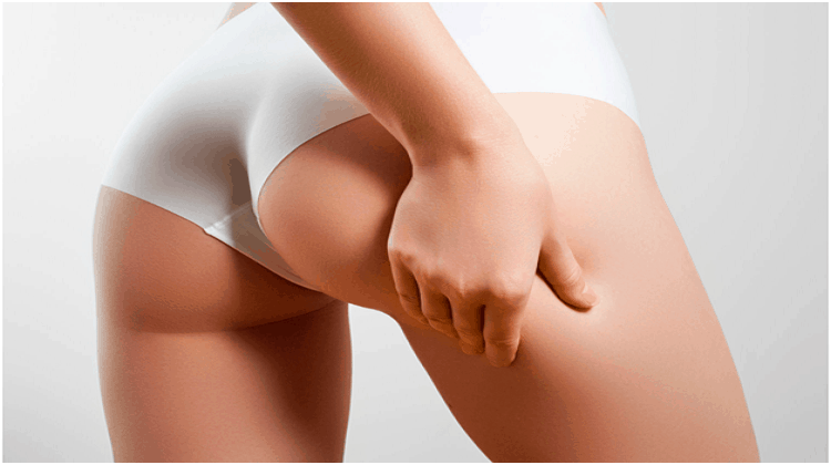 reducing cellulite
