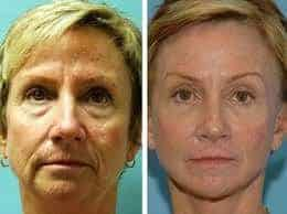Facial Yoga Exercises Before And After Picture