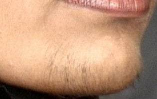 Dating a girl with hair on chin