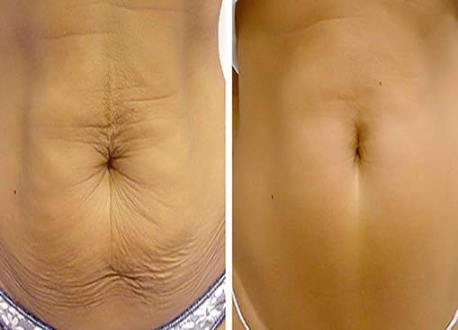 Fractional Laser Treatment for Stretch Marks