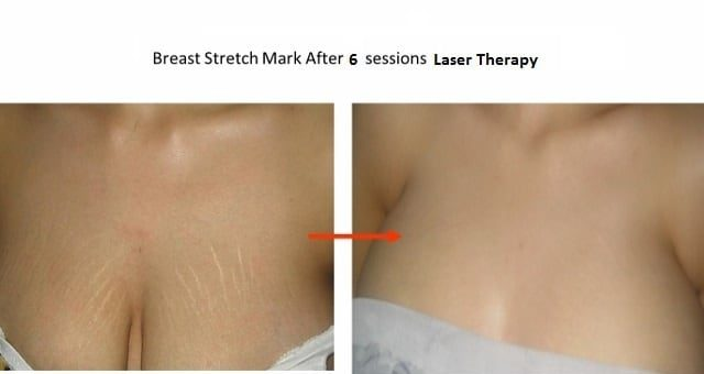 Laser Removal for Stretch Marks on Breasts