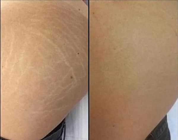 Laser Stretch Mark Removal Treatments