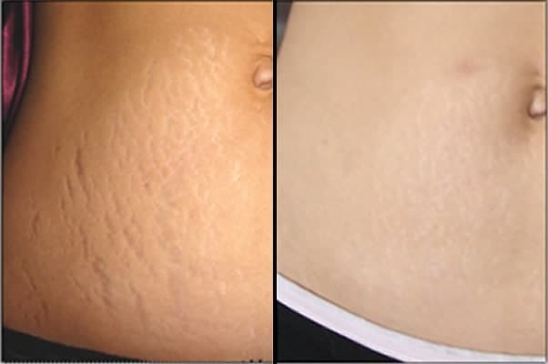 pros of Laser Stretch Mark Treatment