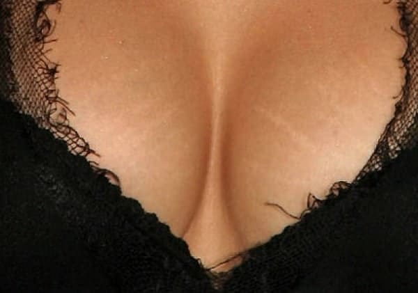 Stretch Marks on Breasts
