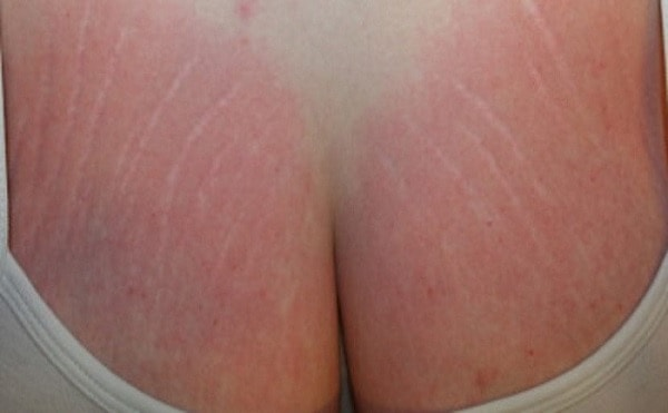 causes of Stretch Marks on Breasts