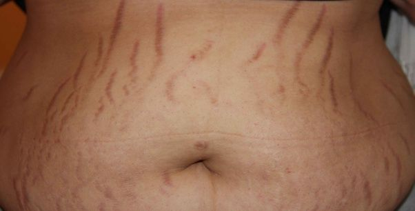 stretch marks on the stomach