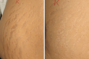Causes Of Stretch Marks Definition Types Best Treatments And Home Remedies In Men And Women