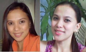 Before and after use of skin whitening pills