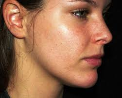 How to get rid of sun poisoning rash on face