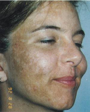 White Patches On Face Causes Of Spots Dry Bumps After