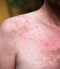 Sun Poisoning Rash Treatment Pictures What To Do Amp How