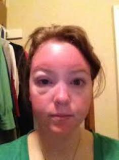 Sun poisoning swelling on face