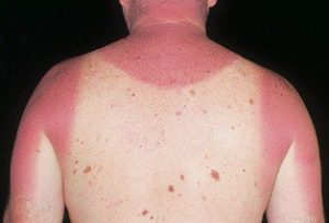 sun poisoning pictures
