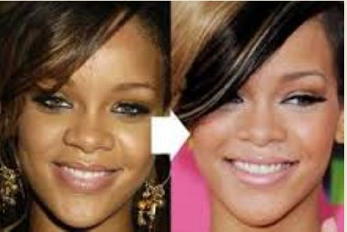 Rihanna skin lightening