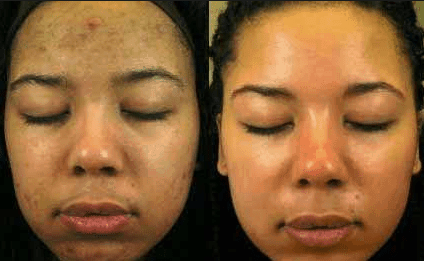 How To Lighten Skin Overnight Fast Naturally Skin