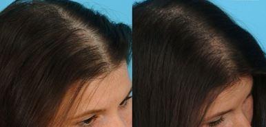 how to use egg yolk for hair growth