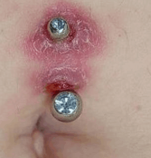 infected navel piercing symptoms