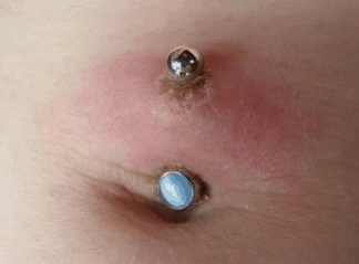 infected navel piercing