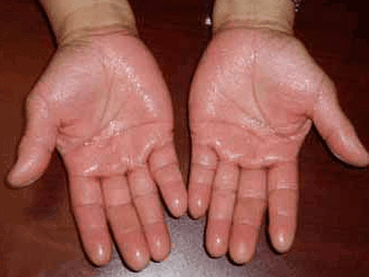 How to Stop Sweaty Hands, Feet, Fast, Permanently