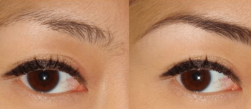 Castor Oil for Eyebrows, Growth, Eyelashes, What Kind ...