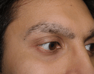 Eyebrow falling out male