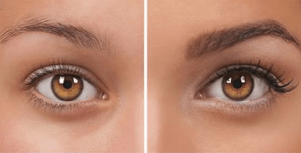How to regrow over plucked eyebrows