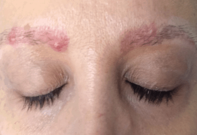 causes of pimples on eyebrows