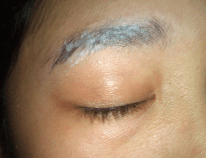 Dandruff in eyebrow causes