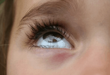 Causes of dandruff in eyebrow