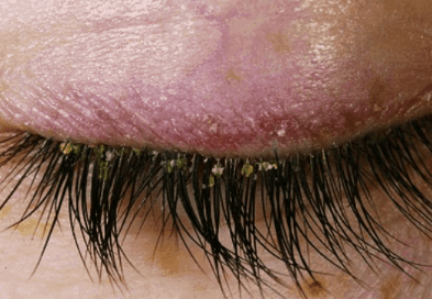 Causes of dandruff in eyelashes