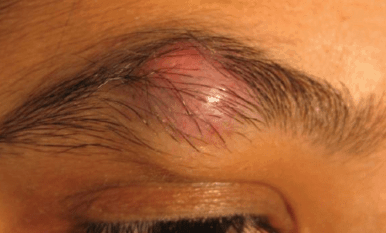 Ingrown eyebrow hair causes