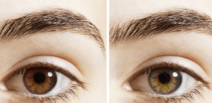 Reasons why my eye color change
