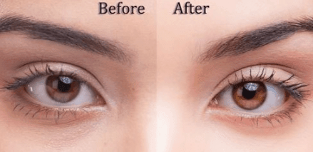 Why do eyes change color with moods, emotions and age