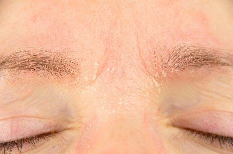 Dandruff In Eyebrows Dry Skin Get Rid Remove Naturally Home