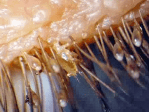 Eyelash Mites Causes Symptoms In Humans Pictures