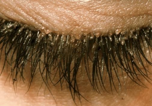 Eyelash mites causes
