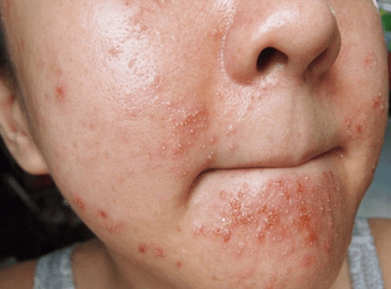 spots on the cheeks
