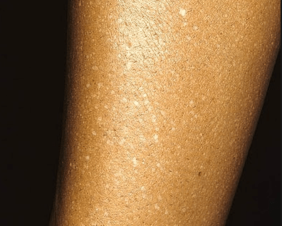 white spots after tanning