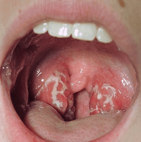 white spots on back of tonsils