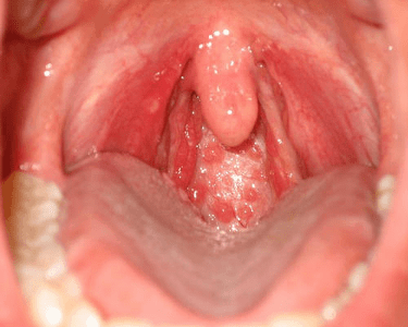 unprotected sex immediate sore throat