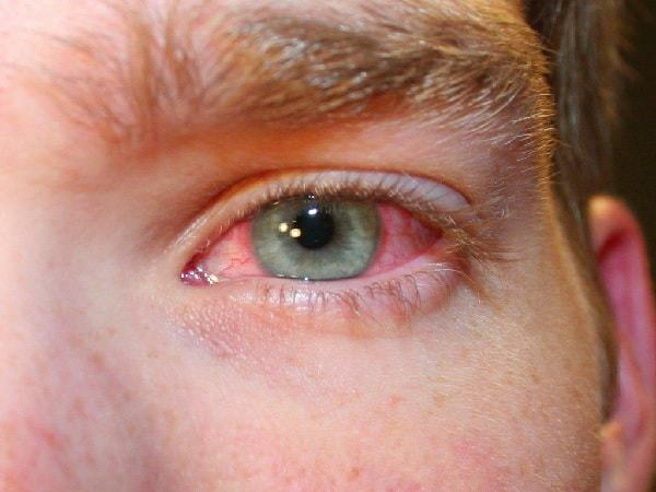 white sores on eyes with redness