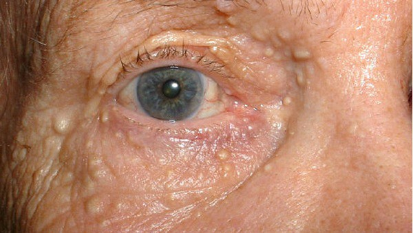 white dots on eyelids-syringoma