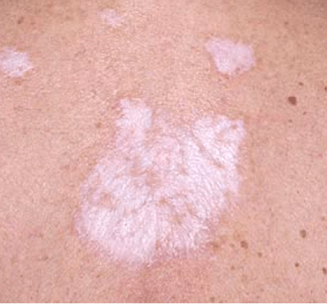white spots on skin treatment