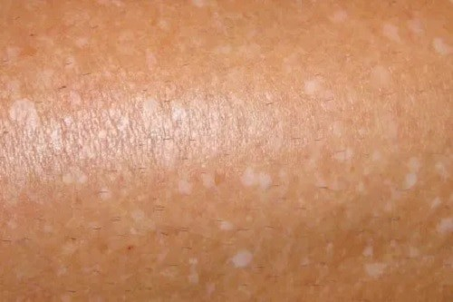 small white spots on skin