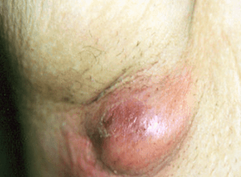 painful lump in armpit causes