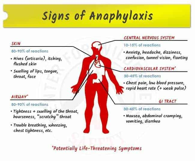 Anaphylaxis signs
